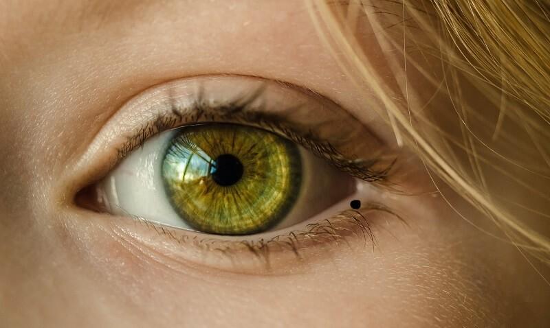 nốt ruồi trong mắt