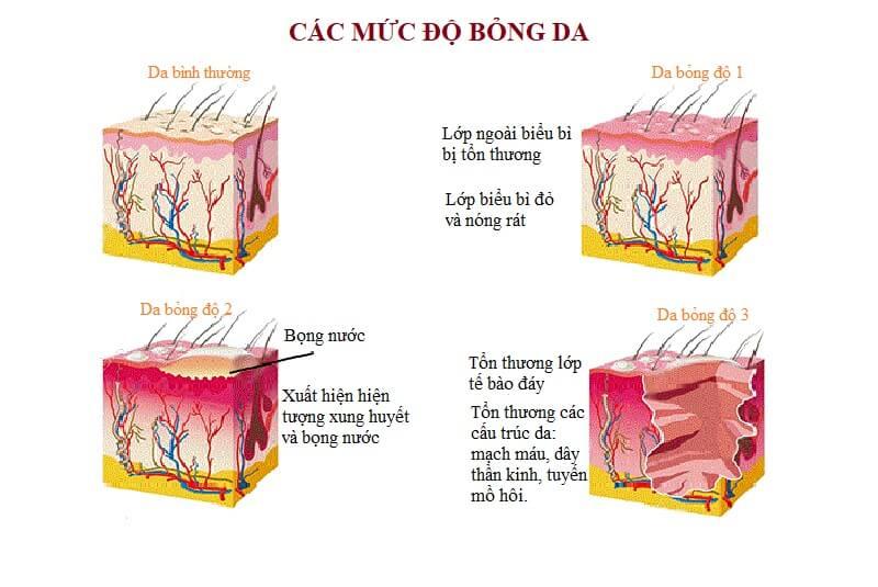 cach-tri-seo-bong