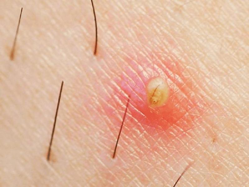 viêm nang lông là gì