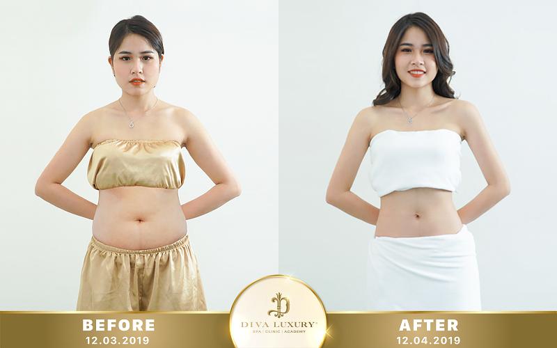Cách Tính Chỉ Số BMI Cho Người Việt Nam Đúng Chuẩn