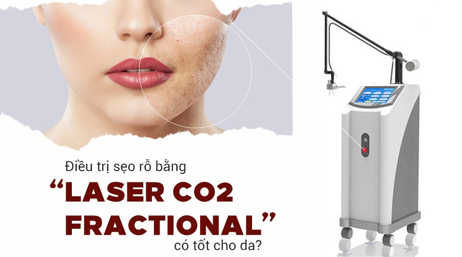 laser-co2-fractional-co-tot-khong