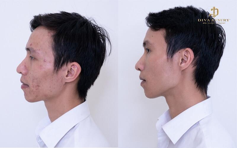 tri-seo-lom-bang-mat-ong-6