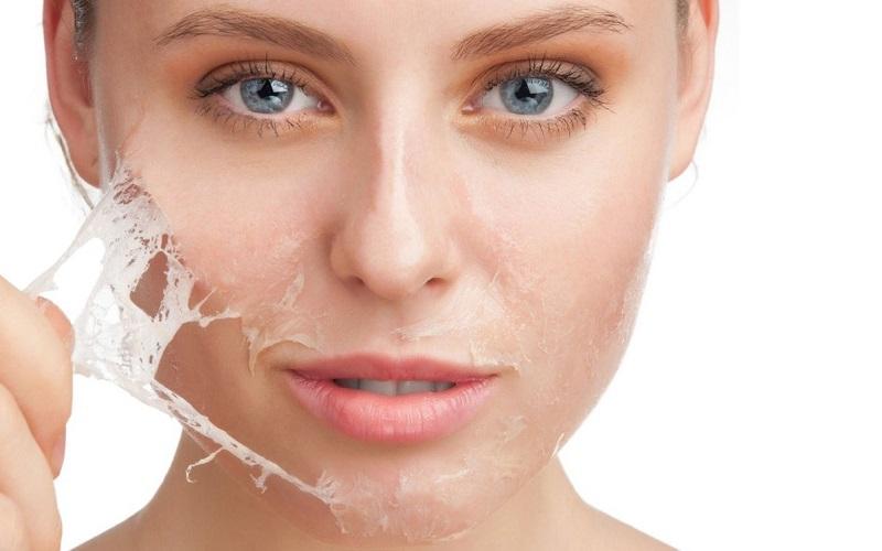 5 cách phòng nám da mặt được nhiều người tin tưởng