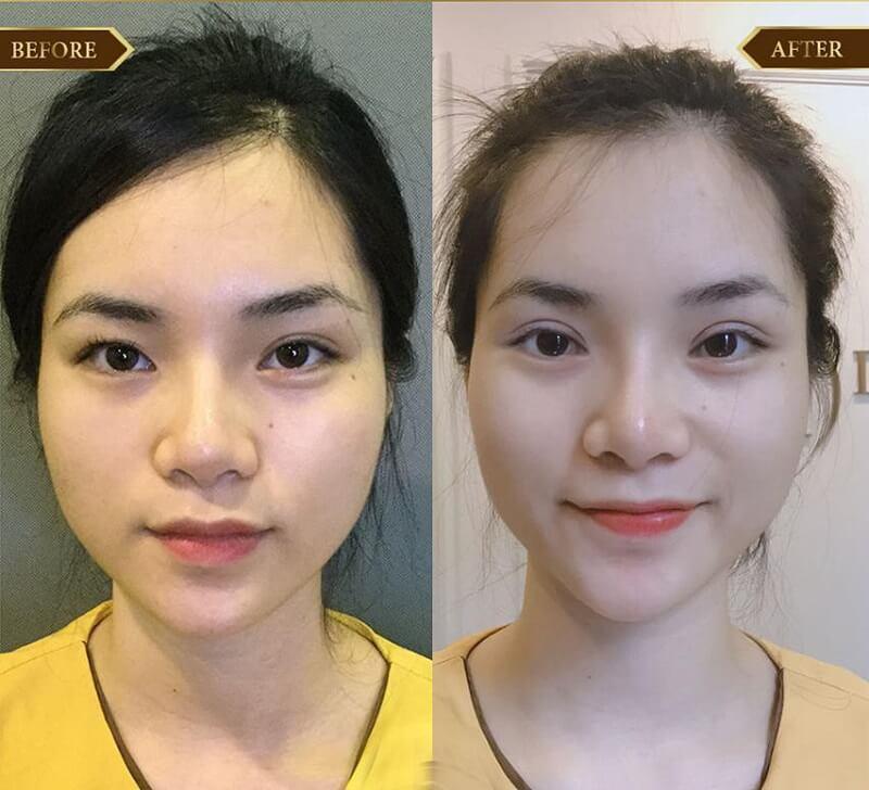 cat-mi-mat-co-de-lai-seo-khong-12