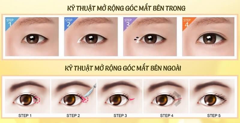 co-nen-mo-goc-mat-khong-1
