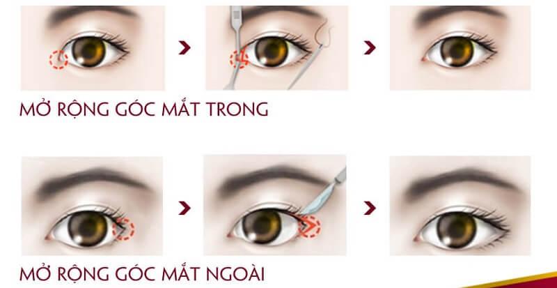 mo-goc-mat-ngoai-2
